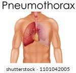 a human anatomy of pneumothorax ... | Shutterstock .eps vector #1101042005