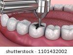 dental fissure fillings ...   Shutterstock . vector #1101432002