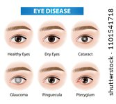 eye diseases vector illustration | Shutterstock .eps vector #1101541718