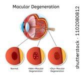 macular degeneration vector... | Shutterstock .eps vector #1102080812