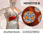 liver with hepatitis b...
