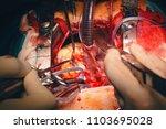 cardiovascular surgery doctor... | Shutterstock . vector #1103695028
