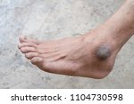 closeup of foot with a... | Shutterstock . vector #1104730598