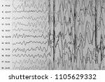 eeg of the patients problems in ... | Shutterstock . vector #1105629332