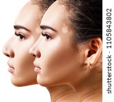 female nose before and after... | Shutterstock . vector #1105843802