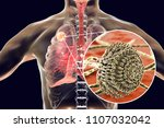 aspergilloma of the lung and... | Shutterstock . vector #1107032042