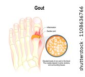 gout is a form of inflammatory...   Shutterstock .eps vector #1108636766