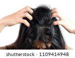 women head with dandruff caused ... | Shutterstock . vector #1109414948