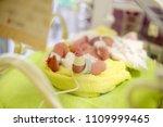 neonatal infant pulse oximeter... | Shutterstock . vector #1109999465
