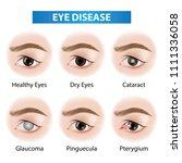 eye diseases vector illustration | Shutterstock .eps vector #1111336058