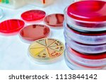 petri dish. microbiological... | Shutterstock . vector #1113844142