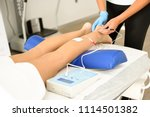 electroacupuncture dry with... | Shutterstock . vector #1114501382