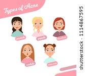 types of acne. illustration of ...   Shutterstock .eps vector #1114867595