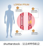 vienna human atherosclerosis... | Shutterstock .eps vector #1114995812