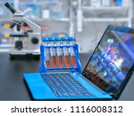 microscope  liquid samples and... | Shutterstock . vector #1116008312