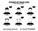 hair loss. stages and types of... | Shutterstock .eps vector #1116194888