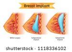brest implant vector medical...   Shutterstock .eps vector #1118336102