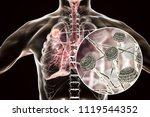 aspergilloma of the lung and... | Shutterstock . vector #1119544352