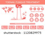 toenail fungus treatment... | Shutterstock .eps vector #1120829975