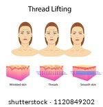 thread lifting  vector...   Shutterstock .eps vector #1120849202