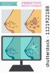 fibrocystic breast changes... | Shutterstock .eps vector #1121922188