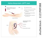 alpha fetoprotein  afp  test.... | Shutterstock .eps vector #1121989388
