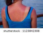 burnt female skin in the sun...   Shutterstock . vector #1123842308