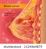 breast cancer medical vector... | Shutterstock .eps vector #1124364875