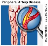 human with peripheral artery... | Shutterstock .eps vector #1125078242