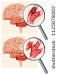 human brain and hemorrhagic... | Shutterstock .eps vector #1125078302