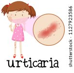 young girl with urticaria... | Shutterstock .eps vector #1127923586