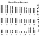 Normal human karyotype - stock photo