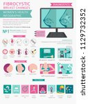 fibrocystic breast changes... | Shutterstock .eps vector #1129732352