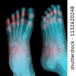 Rheumatoid Arthritis   Gout...