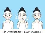 vector woman face. acne before... | Shutterstock .eps vector #1134303866