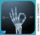 x ray of both human hand  ok    ...   Shutterstock .eps vector #113486572