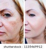 girl face wrinkles before and... | Shutterstock . vector #1135469912