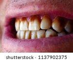 neglected teeth yellowed teeth    Shutterstock . vector #1137902375