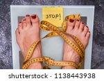 stop anorexia nervosa  society...