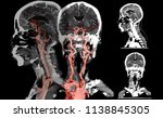 ct angiography  of the brain... | Shutterstock . vector #1138845305