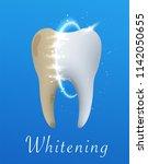 tooth whitening illustration.... | Shutterstock .eps vector #1142050655