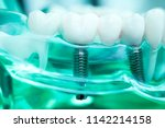 dentist dental teeth teaching...   Shutterstock . vector #1142214158