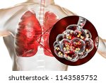 pneumococcal pneumonia  medical ... | Shutterstock . vector #1143585752