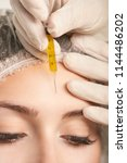 prp forehead woman treatment.... | Shutterstock . vector #1144486202
