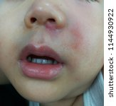 Small photo of A picture of skin infection as cellulitis on the face showed small red bump or mass below the left side of nose swollen painful with radiate to the side involving swollen cheek next to the lesion