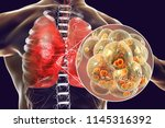 pneumococcal pneumonia  medical ... | Shutterstock . vector #1145316392