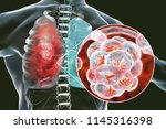 bacterial pneumonia  medical... | Shutterstock . vector #1145316398