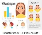 infographics of chickenpox.... | Shutterstock .eps vector #1146078335