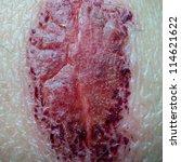 Medical Incrustation Scab Skin...