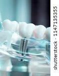 dentist dental teeth teaching... | Shutterstock . vector #1147135355